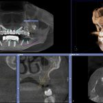 Cone Beam CT上のバーチャルなインプラント手術