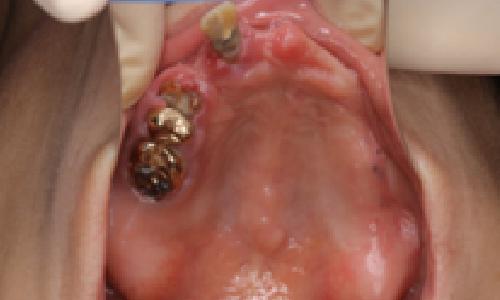 初診時の上顎の状態