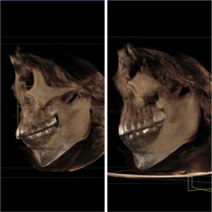 成長期の歯列矯正によって下顎骨の発達を促されている