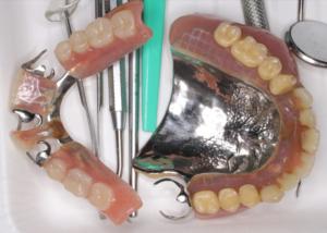 27年前に制作された金属床義歯