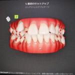 「私41歳もインビザライン矯正始めました」〜歯科助手クラウチ〜
