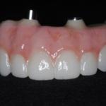 歯科技工1All-on4のジルコニア