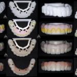 歯科技工2ジルコニアの色付け